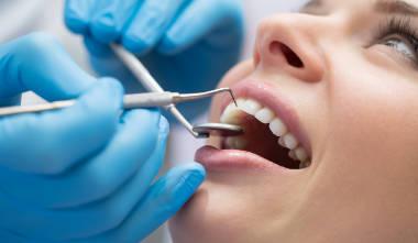 Was ist Zahnfleischbluten?