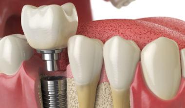 Zahnimplantate – lohnt sich das?